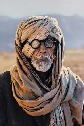 an Afghan refugee with damaged eye