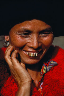 A woman from the Yao ethnic group displays a dazzling set of gold teeth.